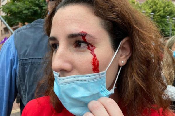 Hiszpania: lewicowcy obrzucili kamieniami deputowaną z konserwatywnej partii Vox